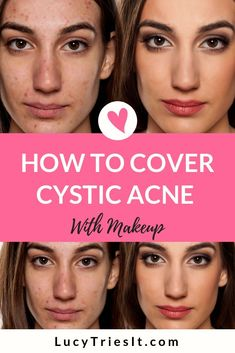 If you have cystic acne, then you should know more about it and how it forms. Cystic acne gets birth from nodule acne and its enlargement. It is the result of severe skin inflammation and it gets worse when the nodule acne swelled up. Cover Up Pimples, Acne Cover Up, Covering Acne With Makeup, Tapas, Acne Makeup, Makeup To Cover Acne, Beauty Hacks For Teens, Natural Hair Mask, Natural Skin