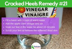 Cracked feet are unsightly and painful. People suffering from cracked feet or heel fissures usually hide their feet in stuffy shoes. Aside from the physical embarrassment of the condition, most people who have dry feet Cracked Feet Remedies, Dry Feet Remedies, Dry Cracked Heels, Dry Heels, Dry Skincare, Avocado Face Mask, Soft Feet, Natural Moisturizer, Tea Tree Oil