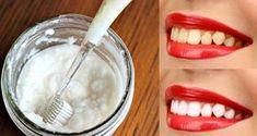 Ces trois astuces élaborées à partir d'ingrédients simples permettent de blanchir les dents à la maison sans aller chez le dentiste.