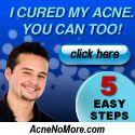 Digital Marketing Noris: Eliminate your acne forever