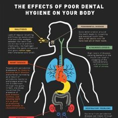 Floss or DIE!!! [INFOGRAPHIC]