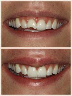 Veneers Chicago#Before&After #makesMEsmile #SugarFixDentalLoft #teeth  #dentistry