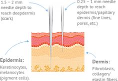 MicroNeedling, aka Collagen Induction Therapy (CIT) is a treatment by which precise micro-injuries are delivered to the skin by an automated needle tip. Microneedling With Prp, Laser Aesthetics, Medical Aesthetician, Skin Needling, Aesthetic Clinic, Derma Roller, Dermal Fillers, Sagging Skin, Acne Scars