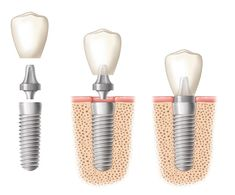 Did you know? Implanted tooth or implant-retained dentures are more stable than other forms of teeth restoration.