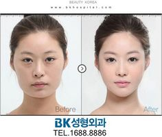 South Korean Plastic Surgery Jaw Shaving / Round Jaw