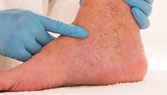 Healthy, Medicine, Remedies, Varicose Veins