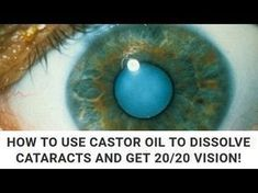 ✓Natural Remedy for Cleaning Your Eyes & Improving Vision in 3 Months   How To Improve Eye Vision✓ - YouTube #improvevisionnaturally #improveyourvision