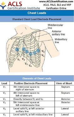 Incorrect placement of electrodes may turn a normal #ECG tracing into an abnormal one.