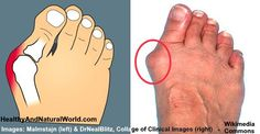 How to Get Rid of Bunion Pain Without Surgery by carrie - Health Remedies Holistic Healing, Natural Healing, Health Remedies, Home Remedies, Natural Remedies, Bunion Remedies, Get Rid Of Bunions, Musculoskeletal System, Natural News