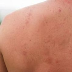 How to get rid of Pimples on the Back ?
