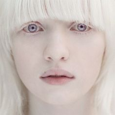 Albino, the fairest of them all ! Axis Layla Fey - A natural albino, has difficulty seeing in bright light and is easily sunburned.Axis Layla Fey - A natural albino, has difficulty seeing in bright light and is easily sunburned. Modelo Albino, Beautiful Eyes, Beautiful People, Pretty People, Most Beautiful Faces, Albino Girl, Albino Model, Violet Eyes, Blue Eyes
