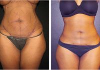 1d9841279a2 Atlanta Liposuction Specialty Clinic (atllipo) on Pinterest