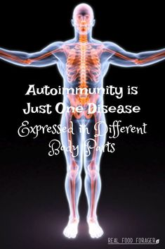 Autoimmunity is a broad condition that has been segmented by medical specialties. Autoimmunity is just one disease expressed in different body parts. Holistic Medicine, Natural Medicine, Herbal Remedies, Natural Remedies, Medical Specialties, Natural Parenting, Alternative Health, Real Food Recipes, Healthy Recipes
