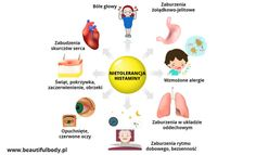 Nietolerancja histaminy – objawy, przyczyny i suplementacja