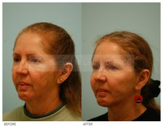 Otoplasty Photos - Otoplasty Before And After Photos By Dr Samuel. Plastic Surgery Photos, Skin Resurfacing, Facial Rejuvenation, Cosmetic Procedures, Chemical Peel, Medical Problems, Your Skin, Photo Galleries, Things To Come