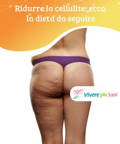 Some cases are due generally to genetic factors, in which case you may have acquired a cellulite problem from your parents. If your parent is covered in cellulite, then you most likely will be too. Causes Of Cellulite, Cellulite Exercises, Cellulite Remedies, Anti Cellulite, Cellulite Scrub, Dieet Plan, Slow Metabolism, How To Get Rid Of Acne, Weights