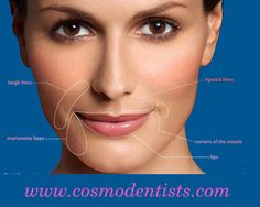 Enhance your appearance and Look-#lip shape correction  Dreaming of a Perfect #Smile???  Visit:goo.gl/8epAQq