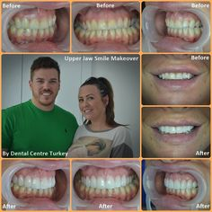 This patient requested a wider, fuller and more vibrant smile line and the closing of the buccal corridor. 10 E.Max Crowns were placed along the upper jaw to achieve the desired result. Smile Makeover, Dental Bridge, Dental Center, Smile Design, Dentist In, Dental Implants, Corridor, Crowns, Turkey