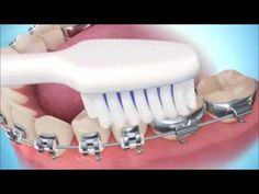 Cepillado Dental con Brackets  | OrtoDental Mexico - YouTube