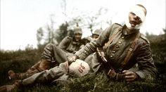 """Apocalypse, la 1ère Guerre Mondiale : les """"gueules cassées"""". Daniel Costelle et Isabelle Clarke racontent la Grande Guerre dans une série de cinq documentaires. Après les deux premiers volets, """"furie"""" et """"peur"""", suivent """"enfer"""" et  """"rage"""", diffusés sur France 2."""