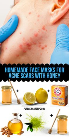 Homemade Face Masks For Acne Scars With Honey - Skin Care Tips - Acne Treatment Pimple Mask, Face Mask For Pimples, Pimple Scars, Masks For Acne Scars, Best Acne Face Masks, Facial Masks, Natural Acne Treatment, Natural Skin Care, Face Treatments For Acne