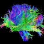 Neuro Imaging at UCLA