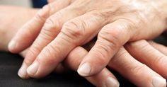 100% Naturally – Cure Arthritis