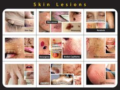 #cmc#mohali offers different #treatment for various #skin #diseases.