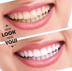 Professional teeth whitening with Philips Zoom is safe, pain-free, sustainable.  www.fresnosmilemakeovers.com  #fresnosmilemakeovers #health #smile #FSM #dentalhygienist #dental #fresno #Invisalign #beautiful #whitening