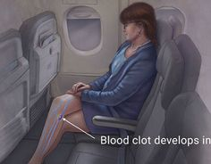 "Check out new work on my @Behance portfolio: ""How to Avoid Deep Vein Thrombosis While Travelling"" http://be.net/gallery/43902137/How-to-Avoid-Deep-Vein-Thrombosis-While-Travelling"