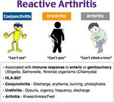 The development of Reiter's syndrome, or reactive arthritis, is associated wit. - All Diseases Medical Surgical Nursing, Nursing Diagnosis, Nummular Eczema, Med Surg Nursing, Reactive Arthritis, Medical Mnemonics, Musculoskeletal System, Pa School, Human Anatomy And Physiology