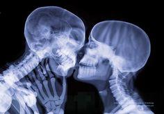 Será que beijar é tão romântico assim? | 14 fascinantes fotos com raios-X que vão mudar seu modo de ver o corpo humano