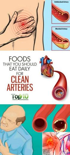 High cholesterol and hypertension happen as a result of clogged arteries. These blood vessels called arteries transport oxygen to all the organs. The clogging of the arteries is known as atherosclerosis and this condition causes heart attacks, strokes, an Good Health Tips, Health And Fitness Tips, Health Advice, Health Diet, Healthy Tips, Healthy Foods, Healthy Eating, Healthy Options, Health Care