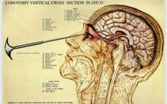 Medical illustration of lobotomy. Lobotomy, carried out principally through the earlier … – free medical books