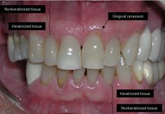 Zahnfleischrückgang kann ziemlich alarmierend sein. Es ist nicht nur schmerzhaft, es kann auch zu Taschen oder Lücken zwischen den Zähnen und dem Zahnfleisch führen, so dass sich schädliche Bakterien bilden können.  LautWebMD, kann es zu schweren Schäden im Stützgewebe und in der Knochenstruktur