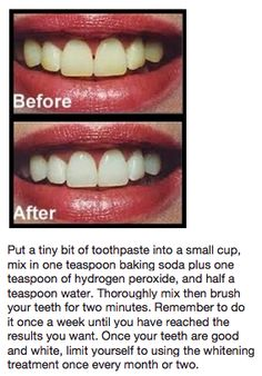 Teeth whitening <--this totally works! I tried it and will continue to use it!!!