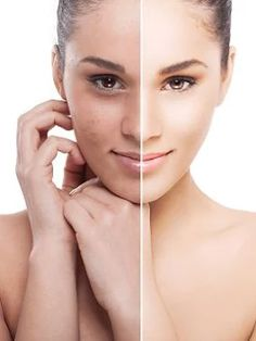 It helps boost the skin's natural renewal process so it renews its appearance at exactly the right time leaving your skin looking more youthful, smoother, younger, hydrated, rested and even more toned. #Best Anti Ageing Treatments Uk #TrueScience