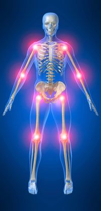Overlap between Myofascial Pain Syndrome and Fibromyalgia, and the New Thinking on the Role of Myofascial Trigger Points
