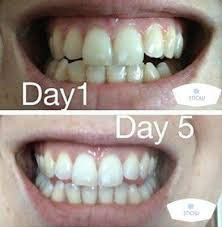 Using Kit Snow Teeth Whitening