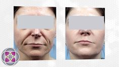 Non Surgical Laser Facelift Treatment Clip Facelift Before And After, Non Surgical Facelift, Skin Care Treatments, Skincare, Conditioner, Videos, Skincare Routine, Skins Uk