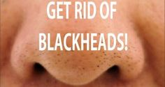In medical terms, blackheads are called open comedones, and they are nothing but larger follicles (open pores) than usual. Follicles are actually some plugs made of dead cells and sebum that blocks the oxidation of melanin (a substance that determines skin color), becoming black. Blackheads usually occur in the T-zone of your face (forehead, nose …