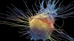 Prostate cancer treatment 'not always needed' - Just keeping an eye on prostate cancer results in the same 10-year survival rate as treating it, a study suggests.