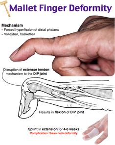 Discover thousands of images about Swan Neck Deformity Mallet Finger Physical Therapy Human Body Anatomy, Human Anatomy And Physiology, Musculoskeletal System, Medical Anatomy, Emergency Medicine, Medical Science, Medical Information, Physical Therapy, Occupational Therapy