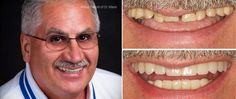 Dental Implants, Implant Crowns and All-Ceramic Crowns. Mann Family Dental | Manchester, NH Dentist