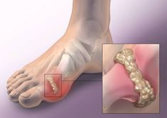 Gout is a type of arthritis, which occurs as a result of the accumulation of uric acid, which forms crystals in the joints, and leads to inflammation and intense joint pain. In most cases, gout is Home Remedies For Gout, Gout Remedies, Natural Home Remedies, Herbal Remedies, Types Of Arthritis, Rheumatoid Arthritis, Arthritis Relief, Uric Acid Gout, How To Cure Gout