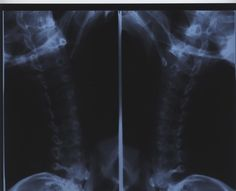 Cervical Spinal Cord Compression Symptoms   LIVESTRONG.COM