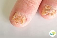 This problem is quite common among people. That is why it is very important to interfere as soon as possible to get rid of nail fungus, because it can spread to other nails and it's also contagious. Don't delay the treatment because nail fungus can lead t Toenail Fungus Remedies, Toenail Fungus Treatment, Nail Treatment, Fungus Toenails, Toe Fungus, Pimples Remedies, Best Nail File, Nail, Pedicures
