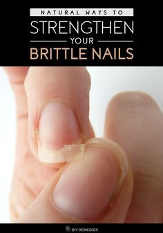 Natural Ways to Strengthen your Brittle Nails Don't worry, there are many natural remedies available for treating your dry, cracking or splitting nails and thus makes your nails strong and shiny. #BrittleNails #StrengthenNails