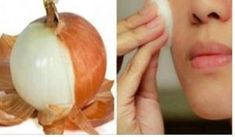 You Will Never Again Throw Away Onion Peels After Reading This Plus Jamais, Beauty Recipe, Natural Cosmetics, Weight Loss Tips, Natural Remedies, Healthy Living, Garlic, Beauty Hacks, Health Fitness
