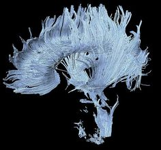 Portraits of the mind: diffusion MRI image